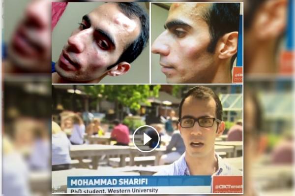 محمد شریفی در مصاحبه با سی بی سی گفته است که پس از حمله دو نفر در محل Covenant Garden Market در شهر لندن انتاریو دچار سر درد شدید و میگرن شده است.