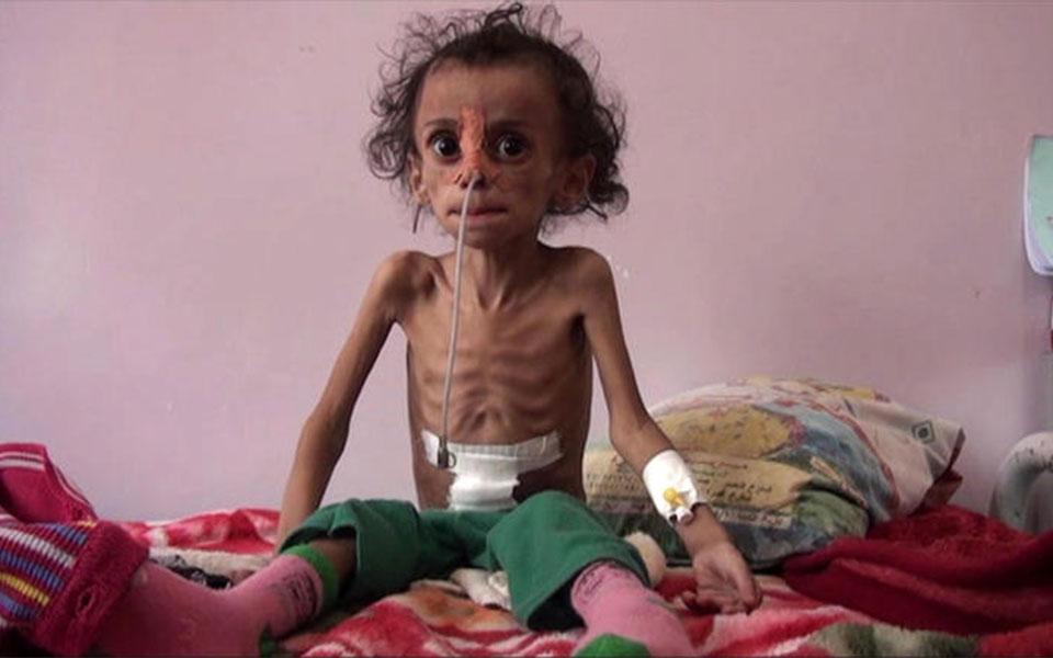 زیر نویس CBS: هیفا هفت ساله قربانی قحطی در یمن تنها ۵ کیلو وزن دارد.  این عکس صحنه ای است از ویدیویی که در این گزارش آمده است.